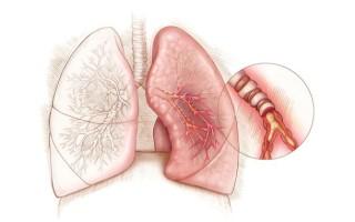 Причины, симптомы и методы лечения бронхита без температуры у ребенка