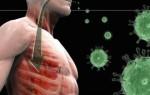 Особенности симптоматики и лечения вирусного бронхита у взрослых и детей