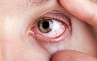 Почему может гноится глаз при простудных заболеваниях, на сколько это опасно и как лечить