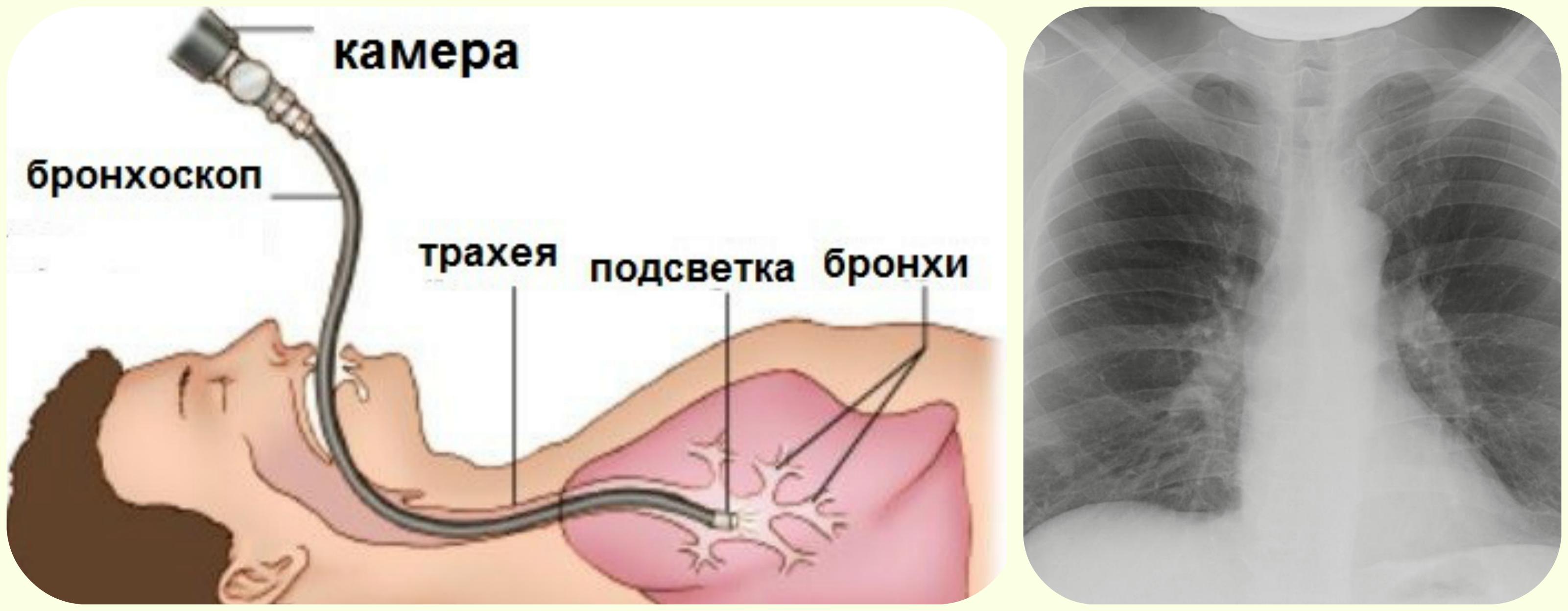 бронхоскопия, рентгенография легких