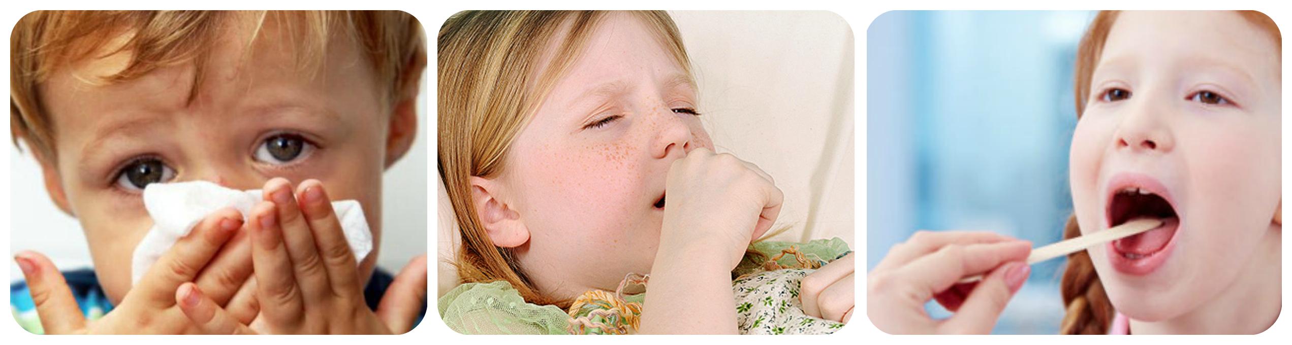 орз симптомы и лечение у детей