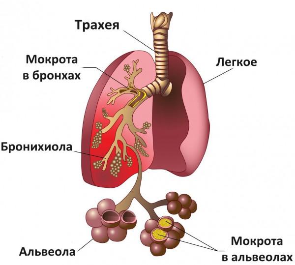 как бронхит отличить от пневмонии