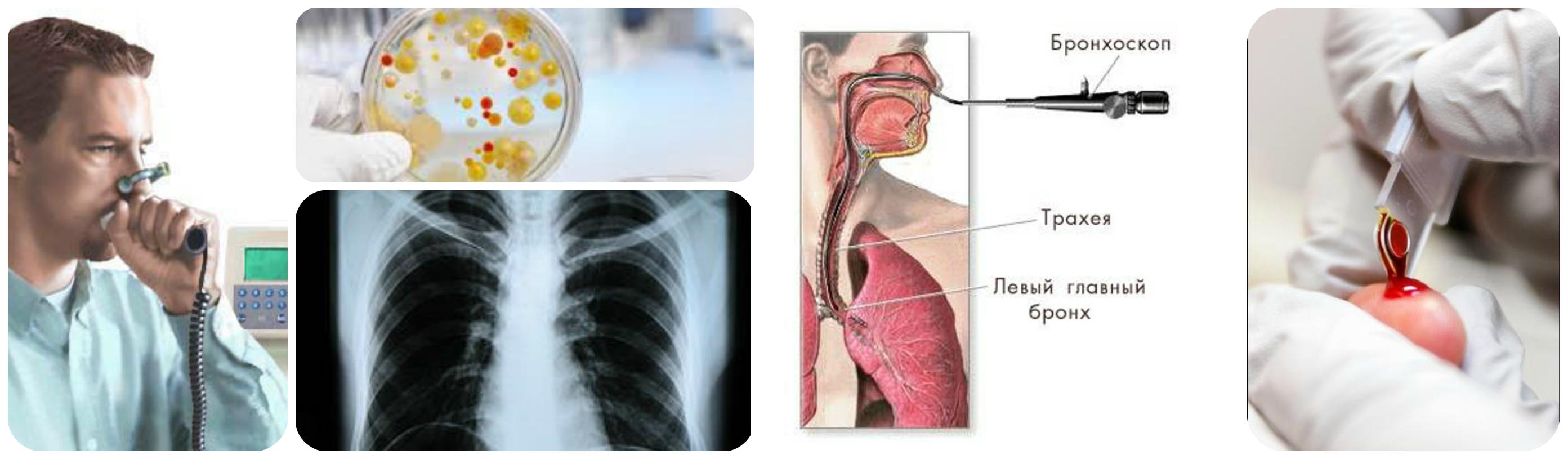 бронхоскоп, рентген,бакпосев,анализ крови