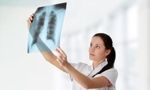 врач смотрит рентген легких