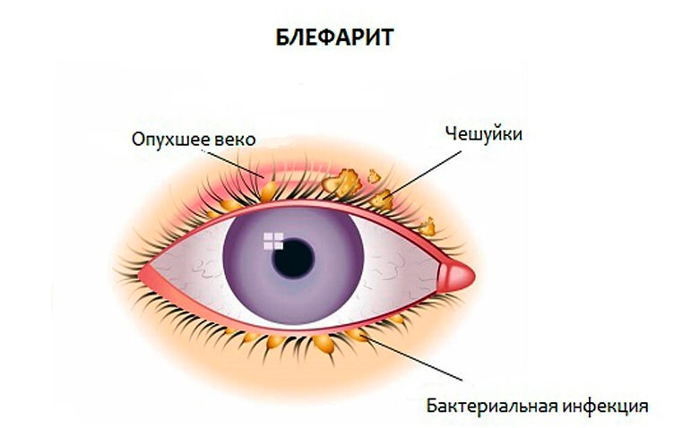 почему болят глаза при простуде - схема блефарита