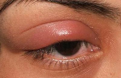 отечность глаз
