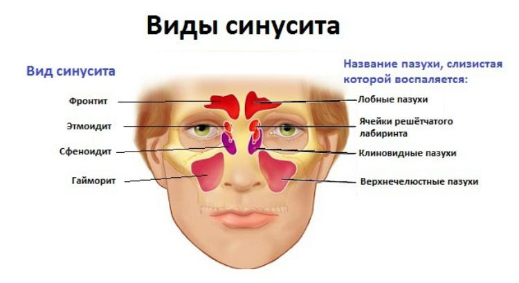 Осложнения после гриппа у пожилых людей thumbnail