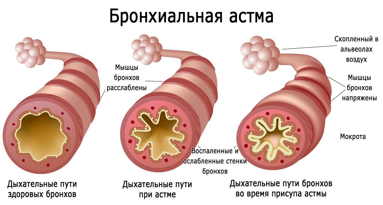 Почему после простуды кашель thumbnail