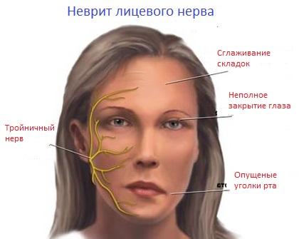 воспалению тройничного нерва