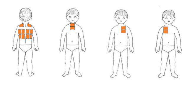 схема расположения горчичников при простуде у детей