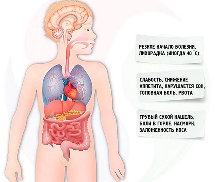 симптомы парагриппа