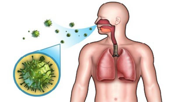 Острый бронхит вызванный бактериальной инфекцией thumbnail