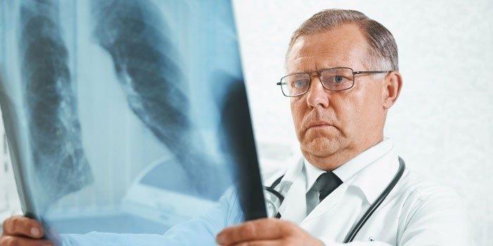 врач изучает снимок легких