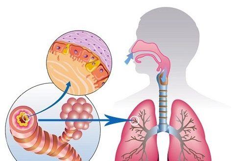 Вирусная или бактериальная инфекция у ребенка при бронхите thumbnail
