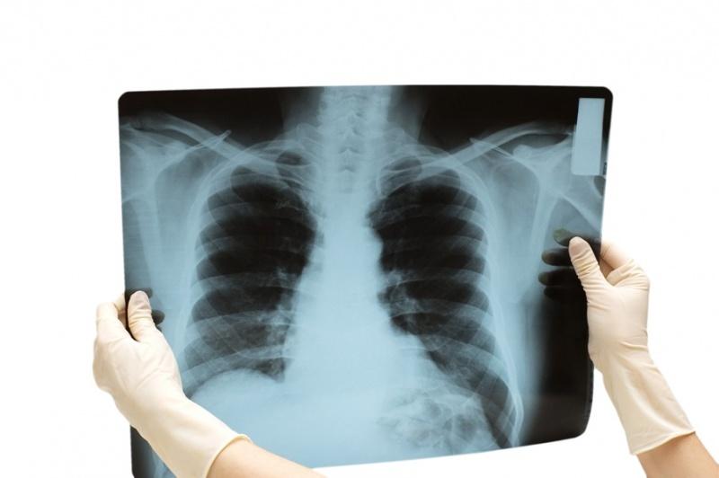 врач держит в руках снимок легких